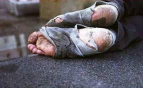 Questa immagine ha l'attributo alt vuoto; il nome del file è piedi-povero.jpg